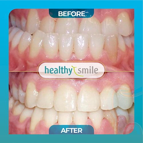 Before and after orthodontist patient in Doral FL